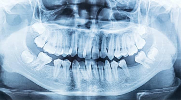 Eu preciso extrair o meu dente siso?