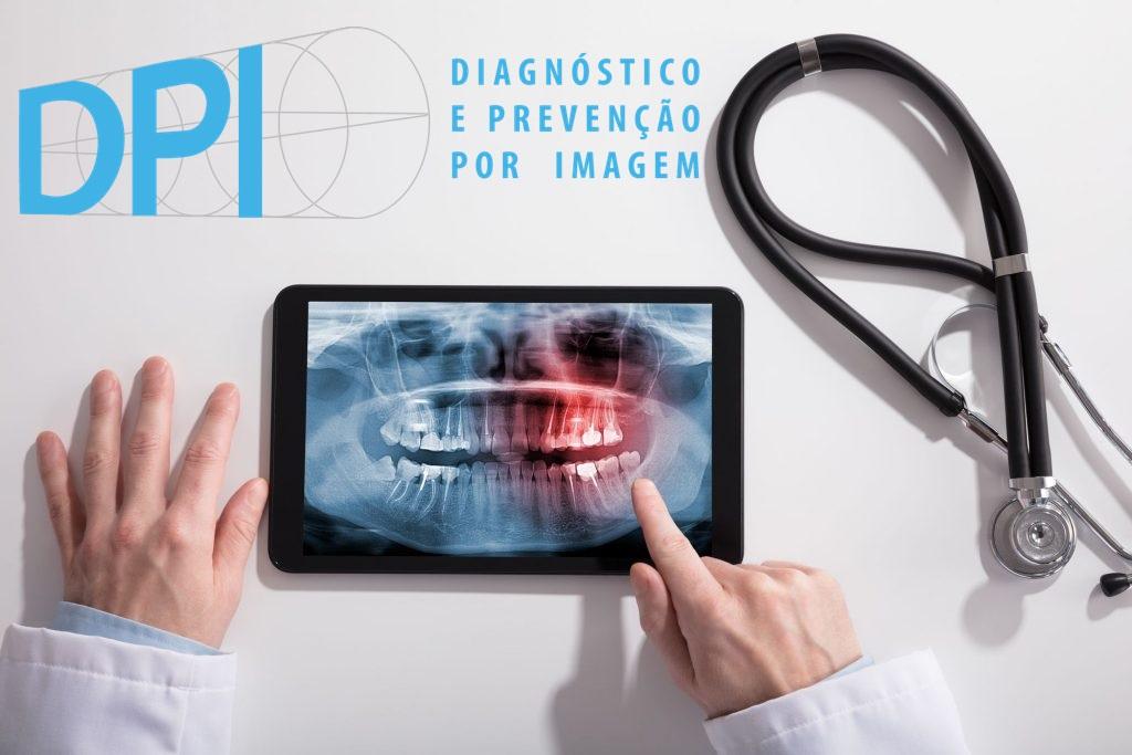 Principais vantagens da radiografia digital